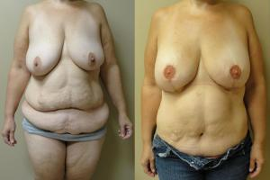 diep-flap-mastectomy-tummy-tuck-1